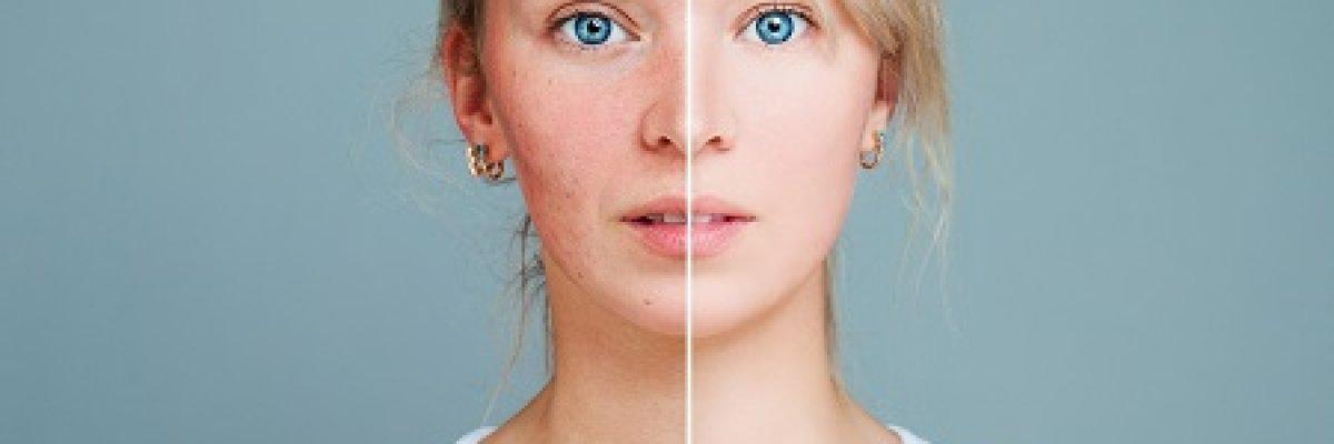 Bőrhámlasztás - otthon vagy szakembernél?