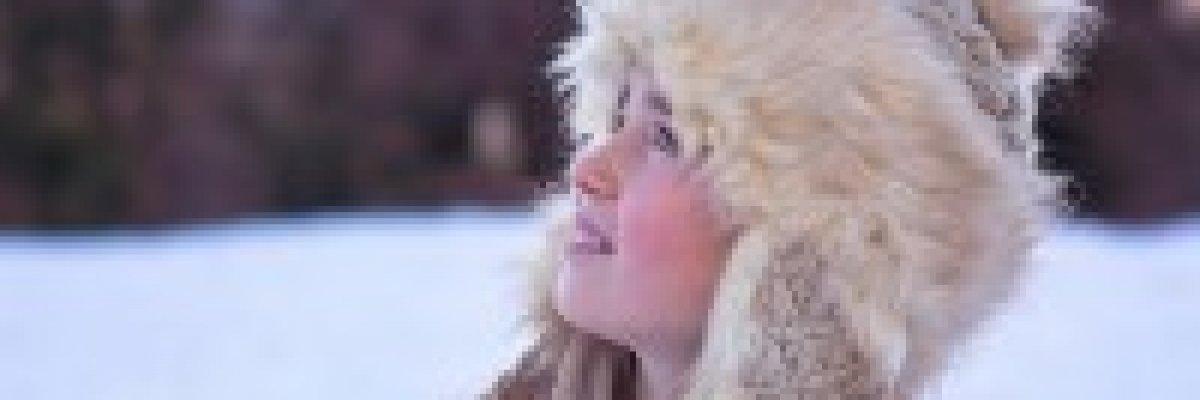 Mit tehet, ha nem a hidegtől lesz pirospozsgás az arca?