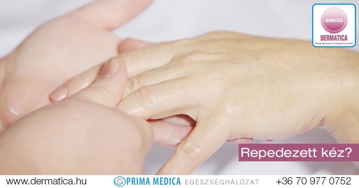 hogyan kezelik a kezek pikkelysömörét?)