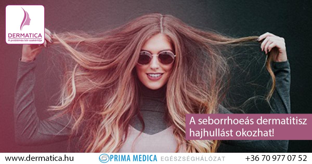 a seborrhea haj pikkelysmr kezelsre kátrányos kenőcsök pikkelysömörből
