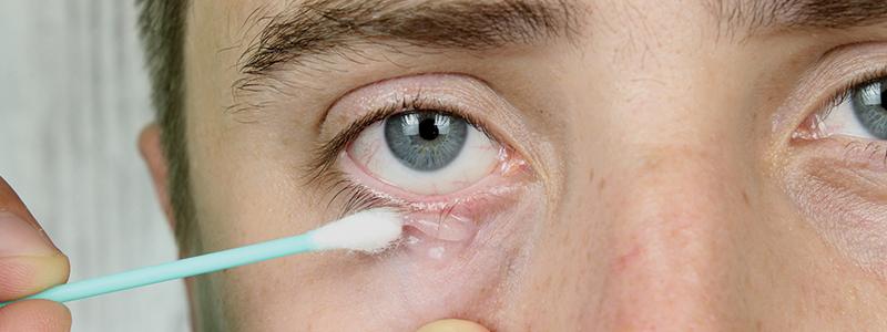 Bőratka bőrgyógyászati kezelése