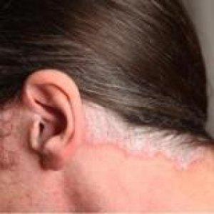 lehet-e kénes kenőcsöt pikkelysömörrel kenni az arcra vörös szimmetrikus foltok a bőrön