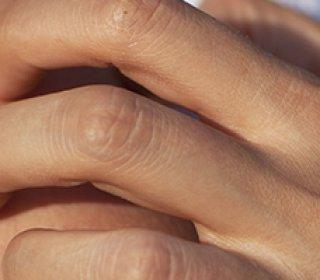 Hétvégi bőrgyógyászati rendelés