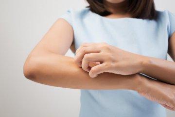 8 dolog, ami csalánkiütést okozhat