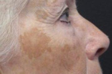 Camouflage, avagy a problémás bőr is lehet szép