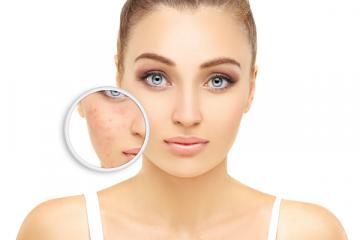 Rosaceás bőr: hogyan segít a kozmetikus?