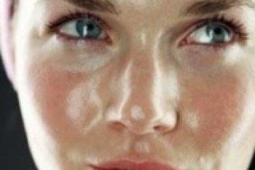 Milyen ápolást igényel a zsíros bőr?