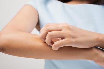 Hogyan kezelhető a téli bőrszárazság?