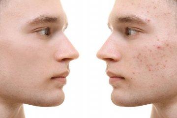 A felnőttkori akne táplálkozással és kezeléssel is befolyásolható
