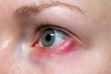 Piros szemhéjak? Ilyen okai lehetnek