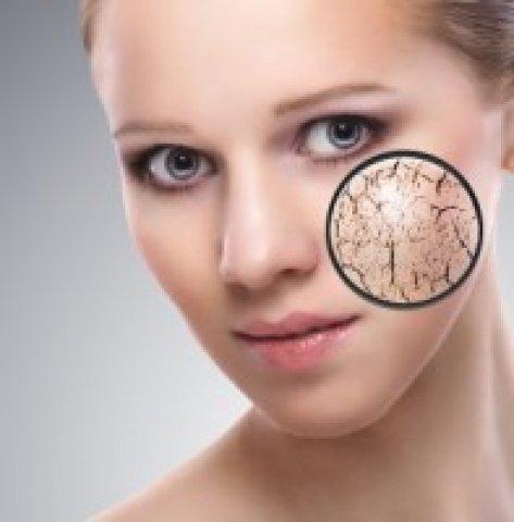 Száraz bőr: hogyan segít a kozmetikus?