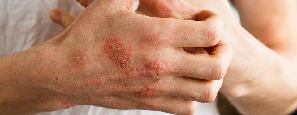 pollen pikkelysömör kezelése vörös foltok az arcon és a nyakon felnőttnél