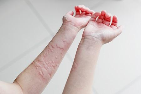 COVID-19 miatt csalánkiütés, foltok, hólyagok is jelentkezhetnek.