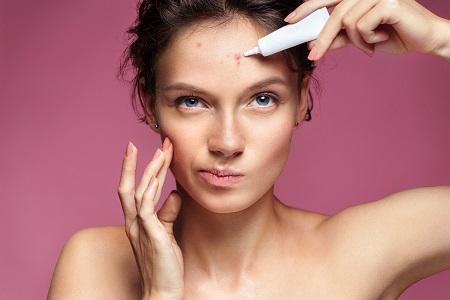 A pattanás kezelésének számos bőrgyógyászati lehetősége van.