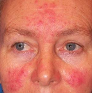 vörös foltok az arc kopása után